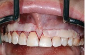 Zabieg pokrycia recesji w okolicy zębów 16-26 dwoma przeszczepami , 7