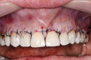 Zabieg pokrycia recesji w okolicy zębów 16-26 dwoma przeszczepami, 8