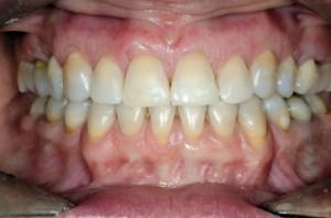 Status tkanek miękkich po zakończeniu interdyscyplinarnego leczenia, 11