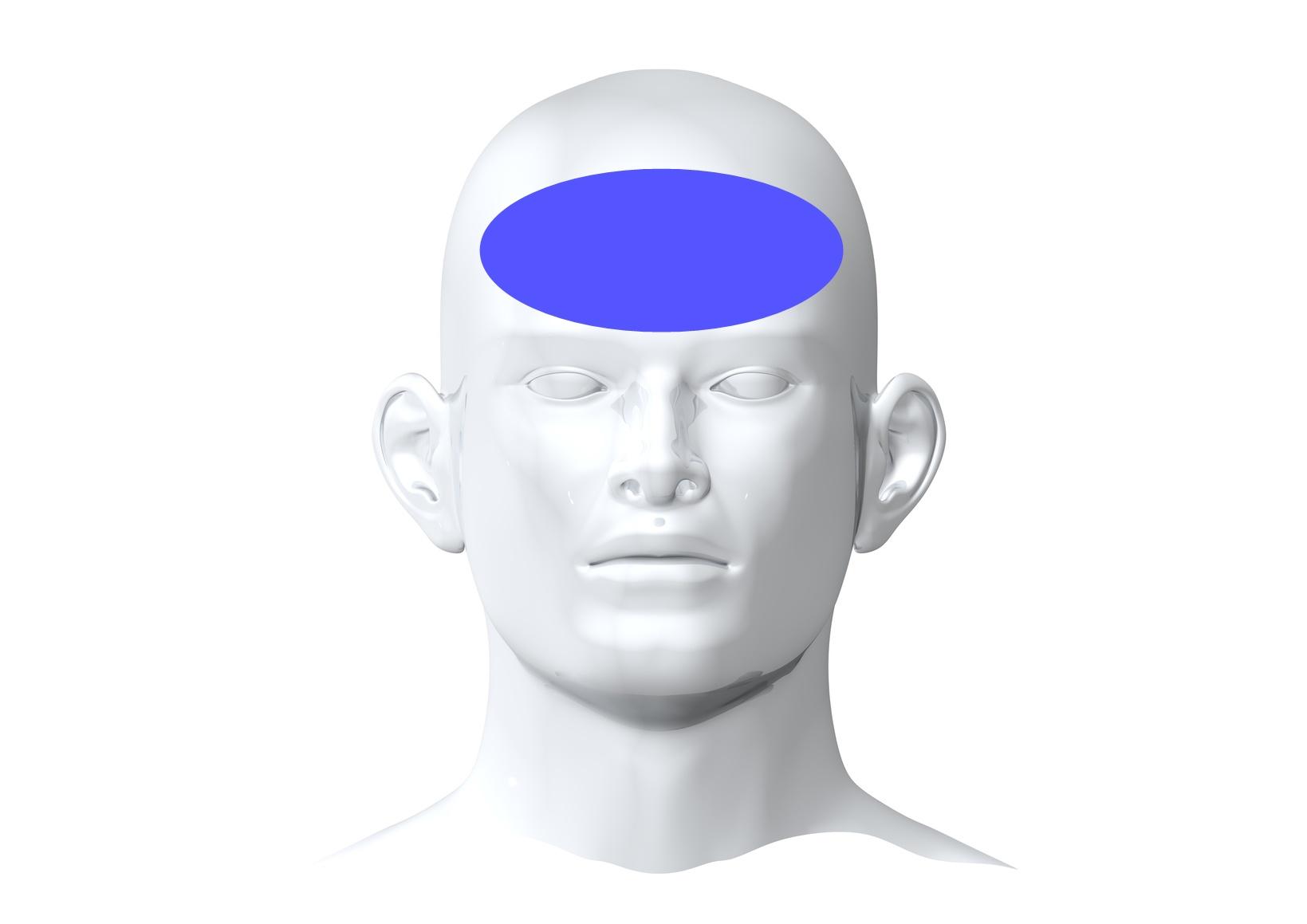 Bóle głowy ryc. 1