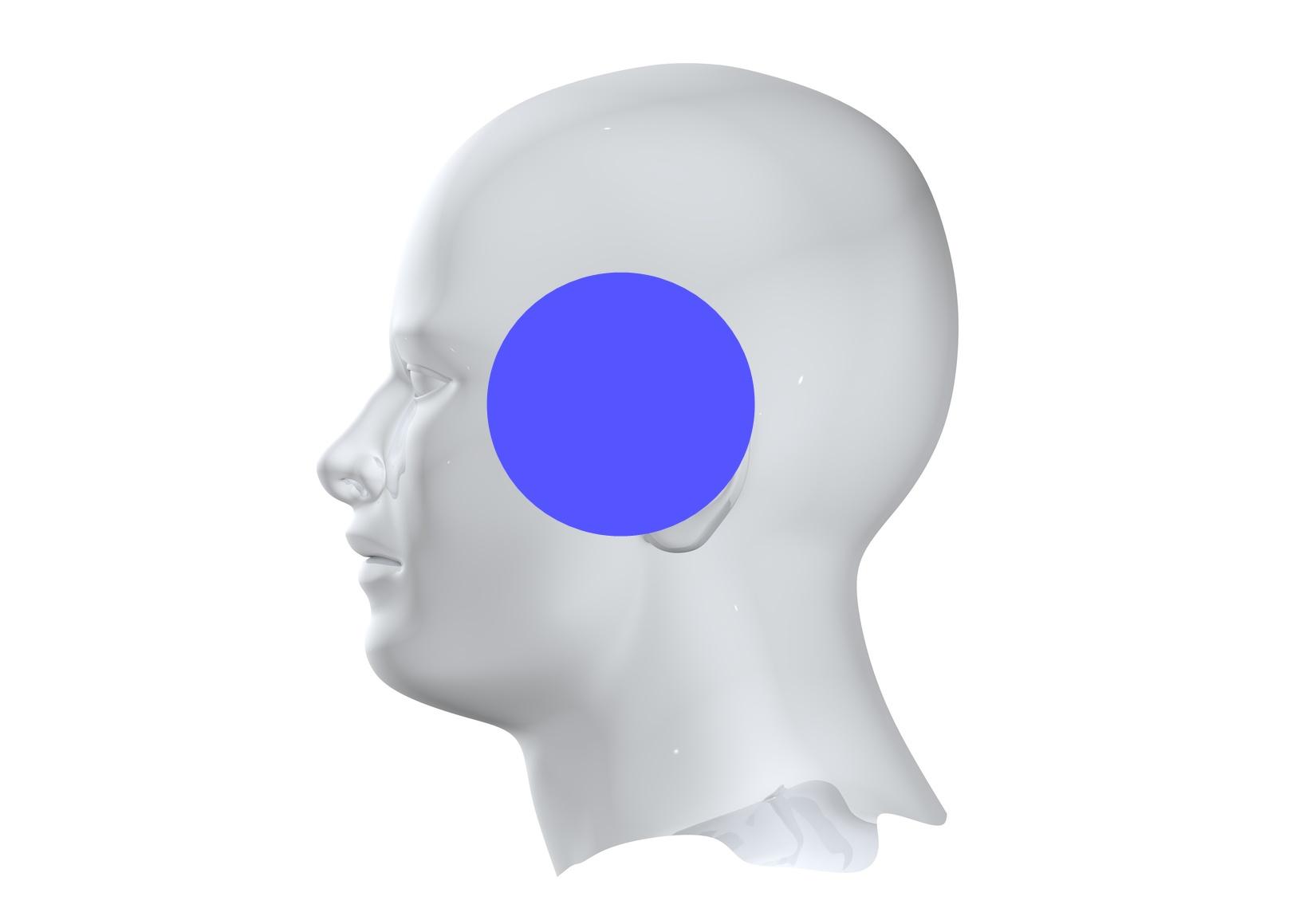 Bóle głowy ryc. 2