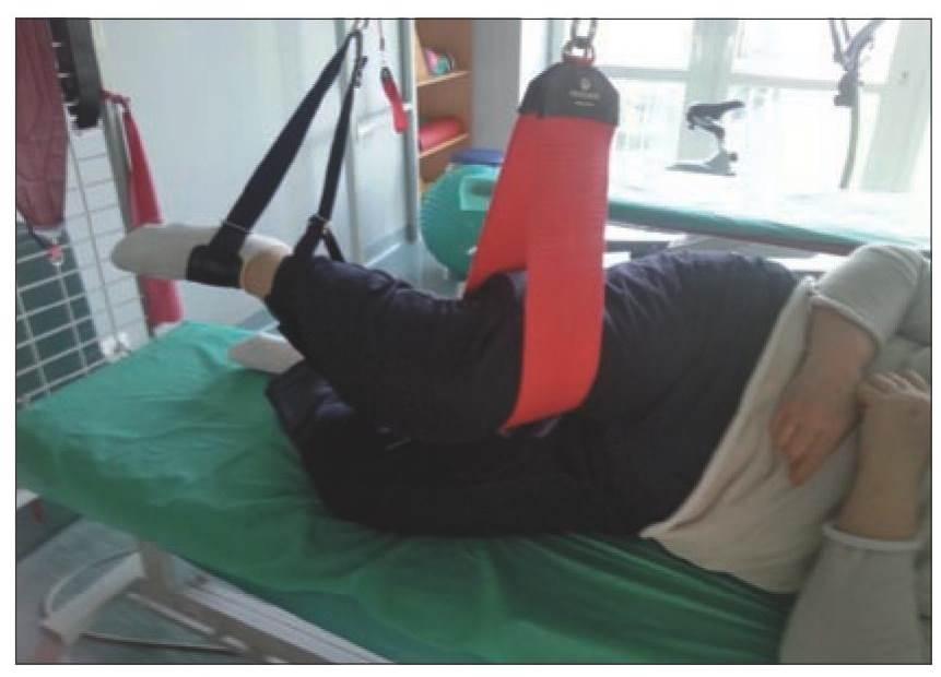 Zwyrodnienie kolan ryc. 6