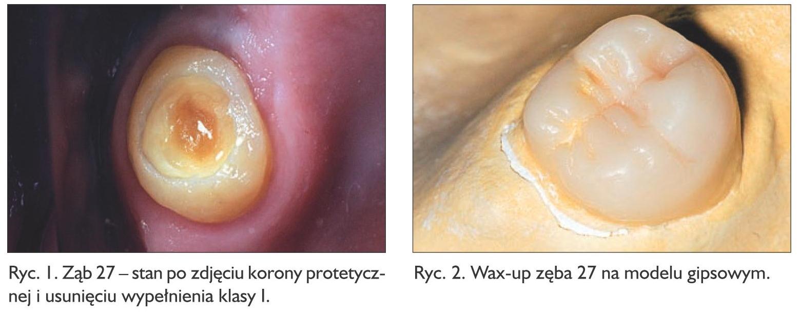 Specjalista radzi Odbudowa zęba ryc. 1-2