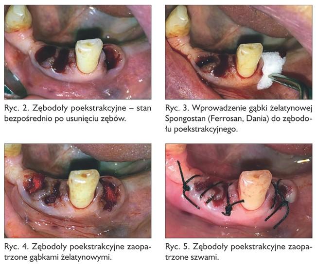 Rycina 2. Zastosowanie hemostazy miejscowej.