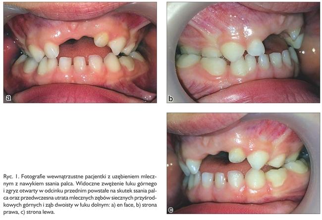 ortodoncja ryc 1