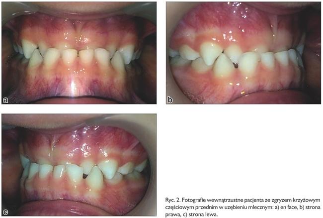 ortodoncja ryc 2