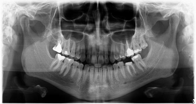 Zabiegi implantacji ryc. 2