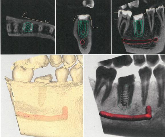 Zabiegi implantacji ryc. 14
