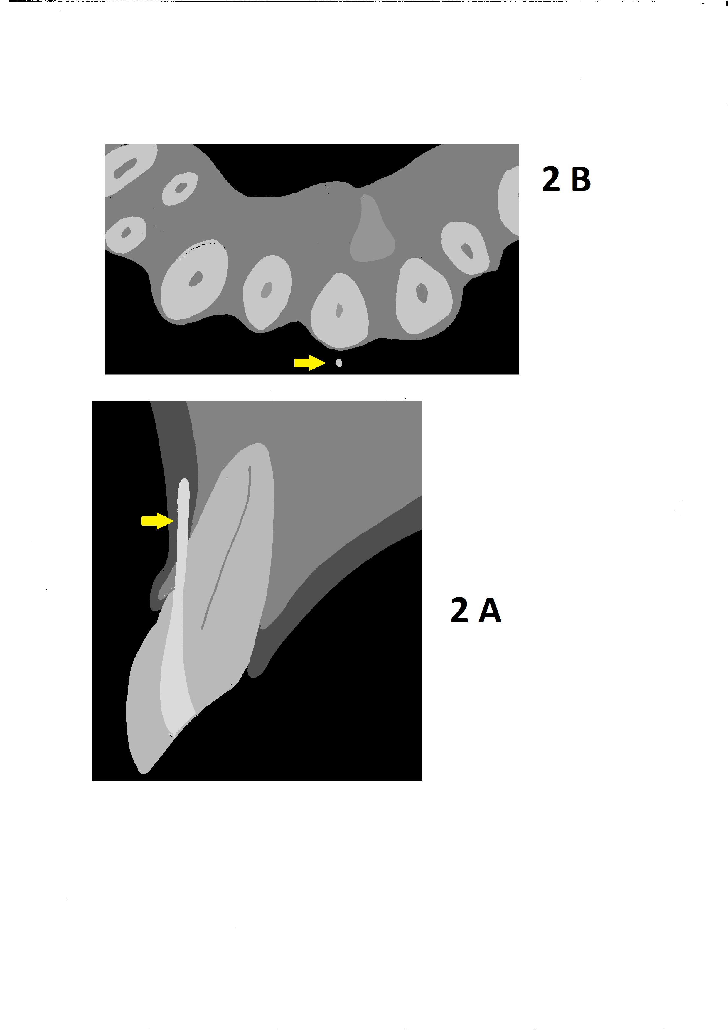 streszczenie MS 3-2